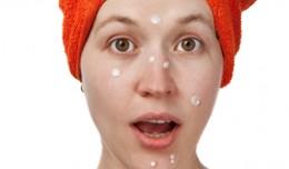 acne-banner